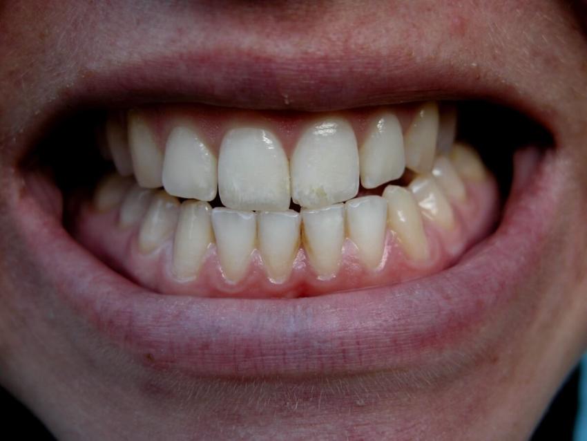 Apeksyfikacja miazgi w niedojrzałych zębach stałych – opis przypadku