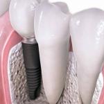implanty 850x478