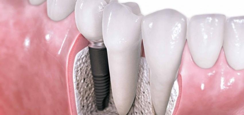 Zalecenia implantologiczne – fakty i mity [szkolenie]