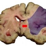 MCA Stroke Brain Humn 2A Kopia