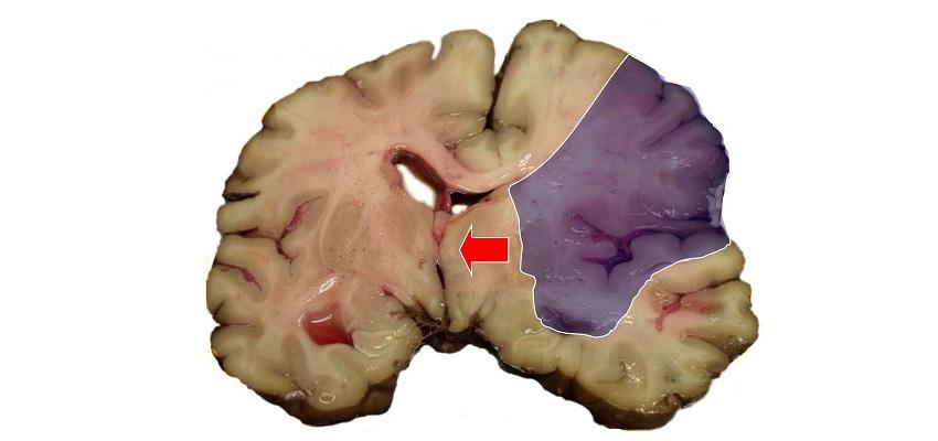 Udar mózgu. Pierwsza pomoc od lekarza stomatologa?