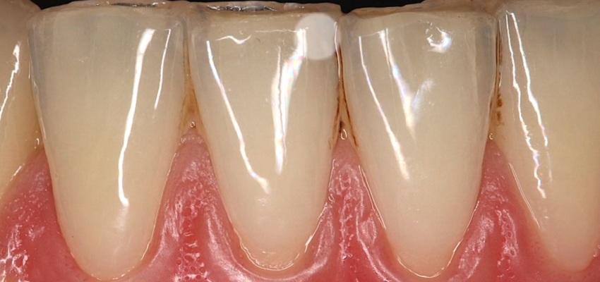 Makrofotografia – podstawa w stomatologii