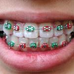 aparat ortodontyczny - Dentonet.pl