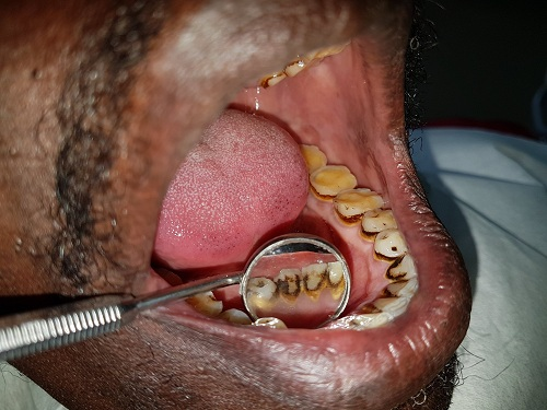 Dentysta Afryka