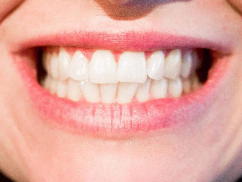 Młodzi mieszkańcy Torunia mogą olśniewać uśmiechem!