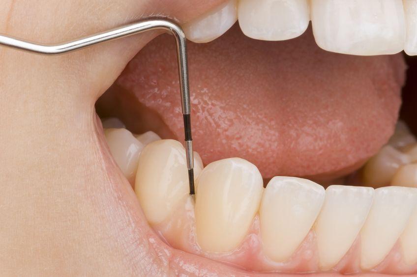Problemy periodontologiczne bliskie każdemu lekarzowi dentyście