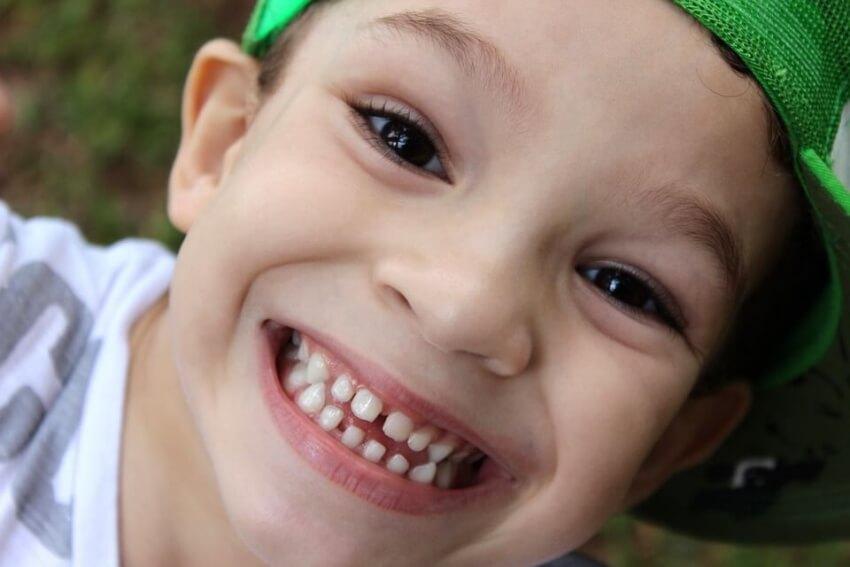 Utrata zębów mlecznych ważnym wydarzeniem w życiu dziecka
