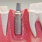 studia implantologiczne