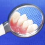 komórki macierzyste z zębów