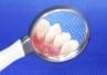 Komórki macierzyste można uzyskać także z miazgi zębów