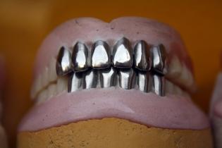 proteza zębowa - Dentonet.pl
