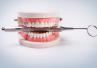 Łódzkie: w 2019 r. 45% więcej protez zębowych niż rok wcześniej