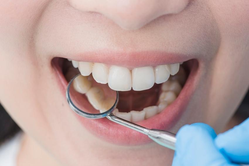 Liczy się estetyka zębów i unikanie krwawienia