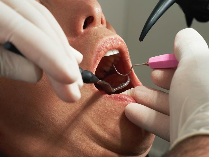 USA: zaktualizowane wytyczne dla leczenia stomatologicznego