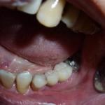 implant 1527310 960 720