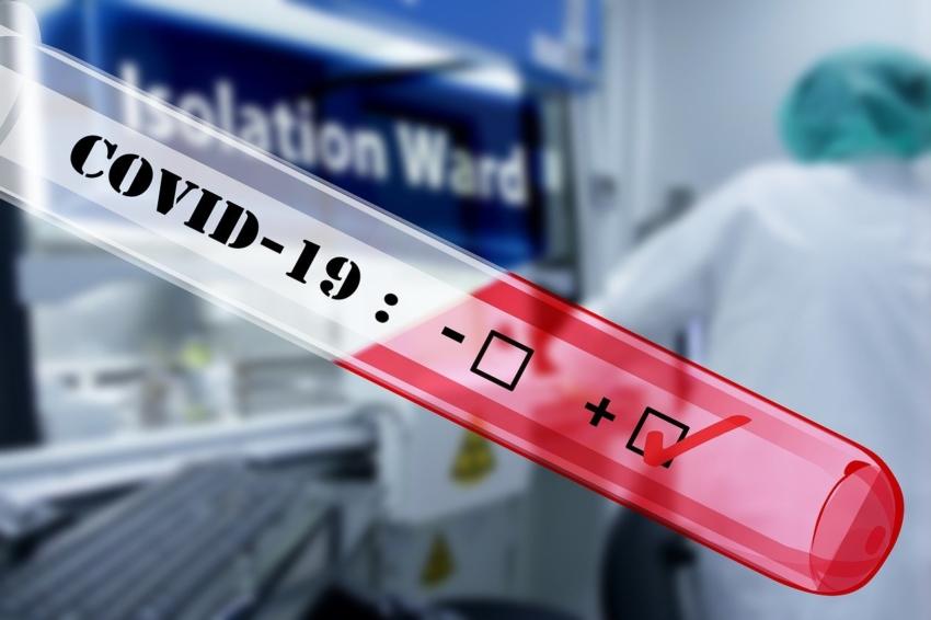 Walka z pandemią koronawirusa: 540 decyzji dla szpitali