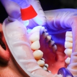 dentist 1864921 960 720
