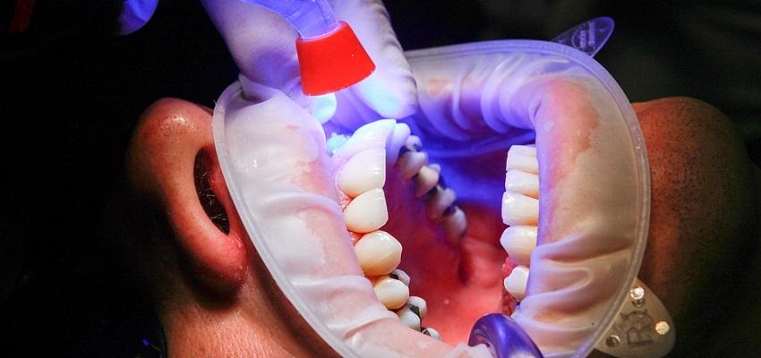 Wizyty obywateli UE u dentysty? Polska w środku stawki