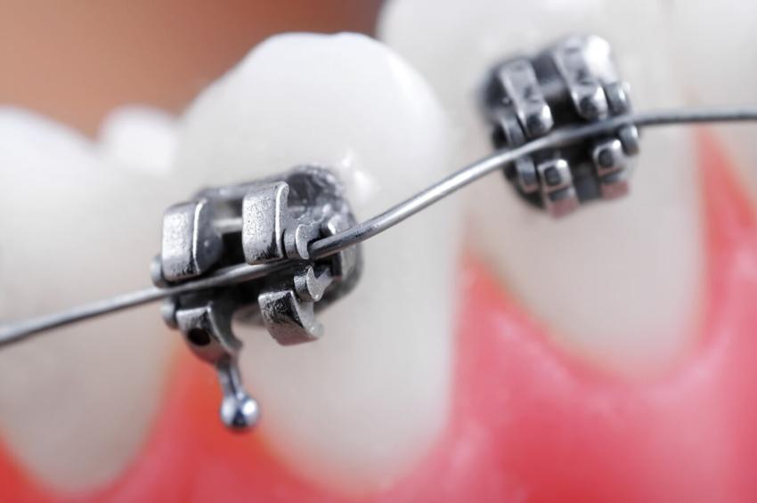 Scientific American: miękka dieta przyczyną stłoczeń zębów