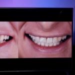 Cerkaski Dentonet