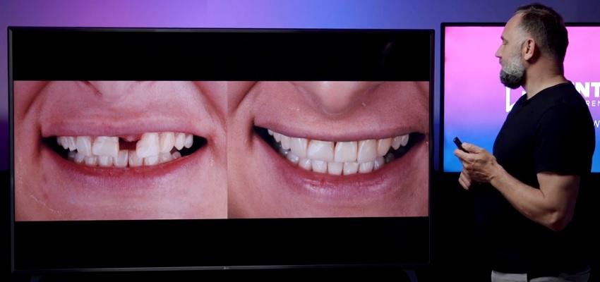 Czwarty dzień I Konferencji Dentonet Online. Implanty, lasery, uśmiech!