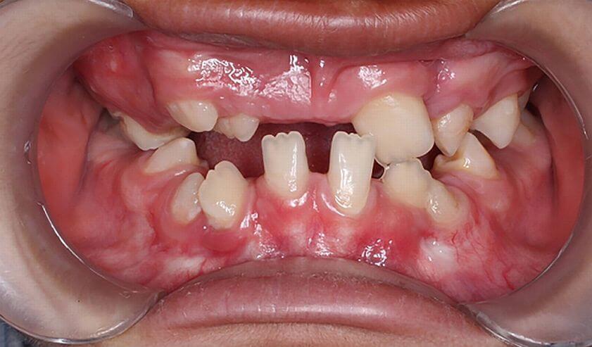 Syndrom Gorlina-Goltza – zmiany w jamie ustnej 9-latka