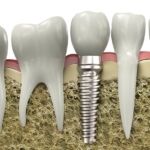implantoprotetyka - Dentonet.pl