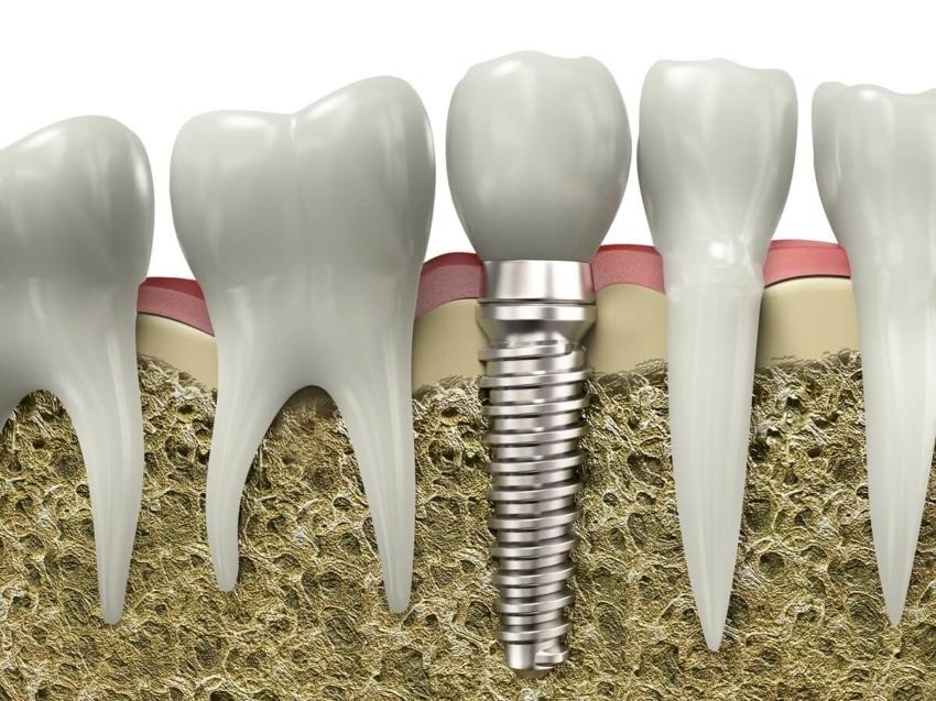 Dokąd zmierza współczesna implantoprotetyka? [video]