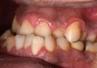 Wydłużone korzenie zębowe – rzadki przypadek radykulomegalii