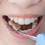 periodontologia - Dentonet.pl
