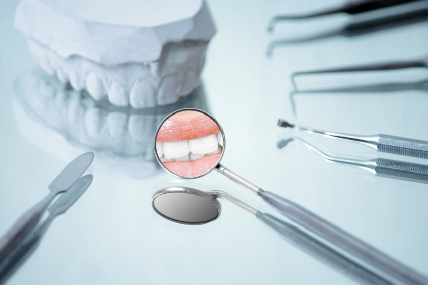 Australia: dentyści-wolontariusze leczą potrzebujących