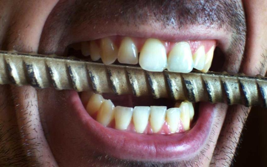 Ciekawostki o zębach – 7 najdziwniejszych faktów na temat zębów