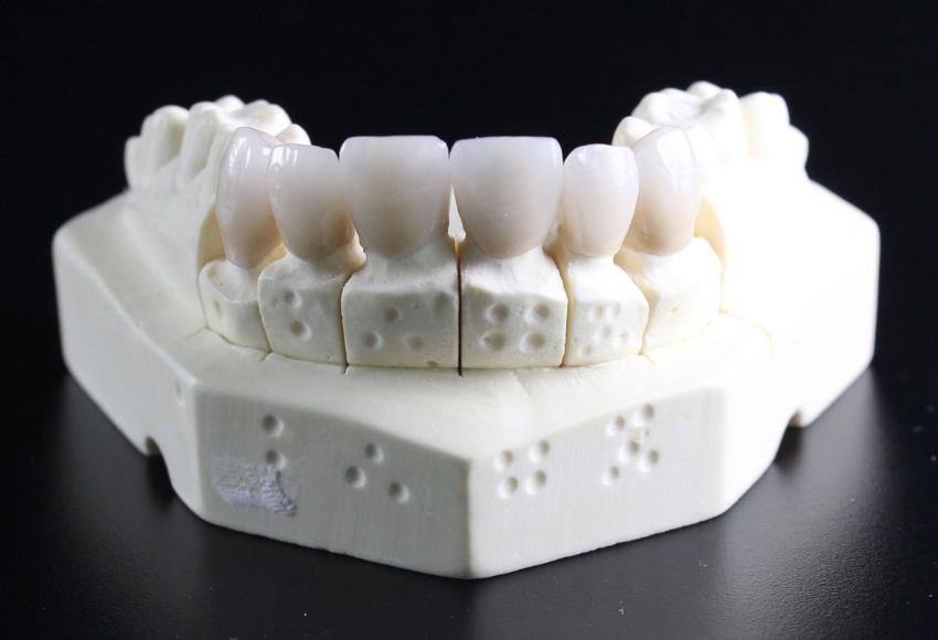 Dlaczego zęby trzonowe ssaków mają więcej korzeni?