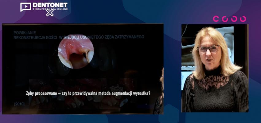 Wybitni polscy stomatolodzy na wirtualnej scenie Dentonetu