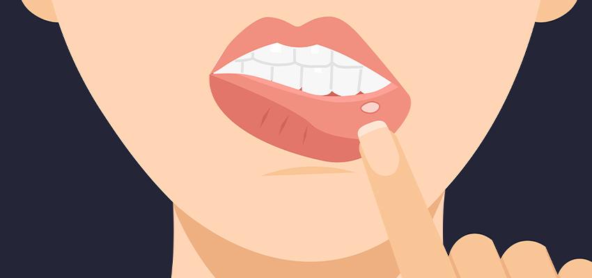 Czym są bolesne zmiany w jamie ustnej i jak można je wyleczyć?