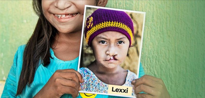 Fundacja Operation Smile dla dzieci z rozszczepem wargi