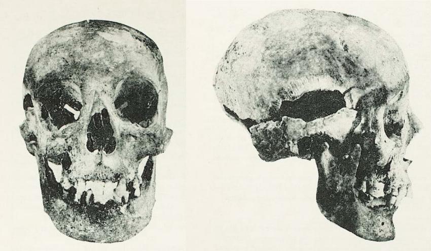 Elżbieta Rakuszanka: stomatologiczne skutki gruźlicy kości