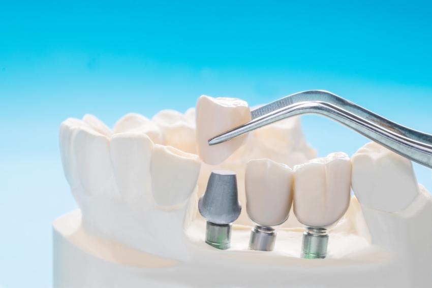 Dlaczego warto zainwestować w implanty zębów?
